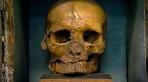 Simon Sudbury's skull