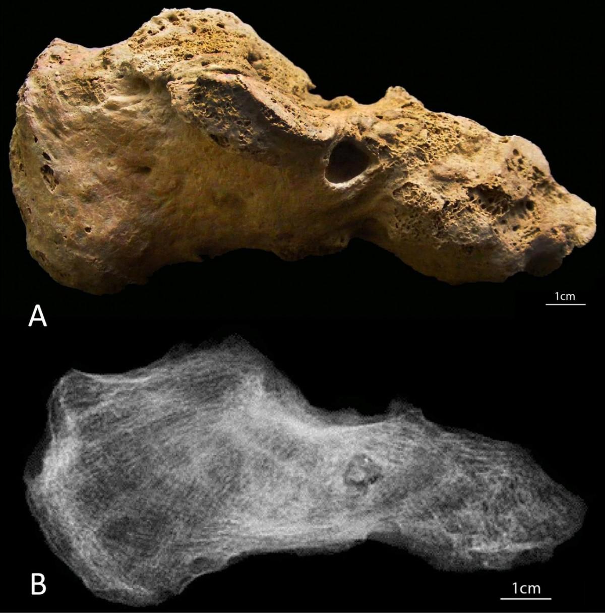medieval foot fungus