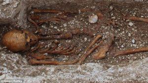 medieval-leprosy-skeleton