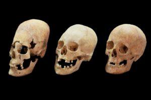 medieval skulls