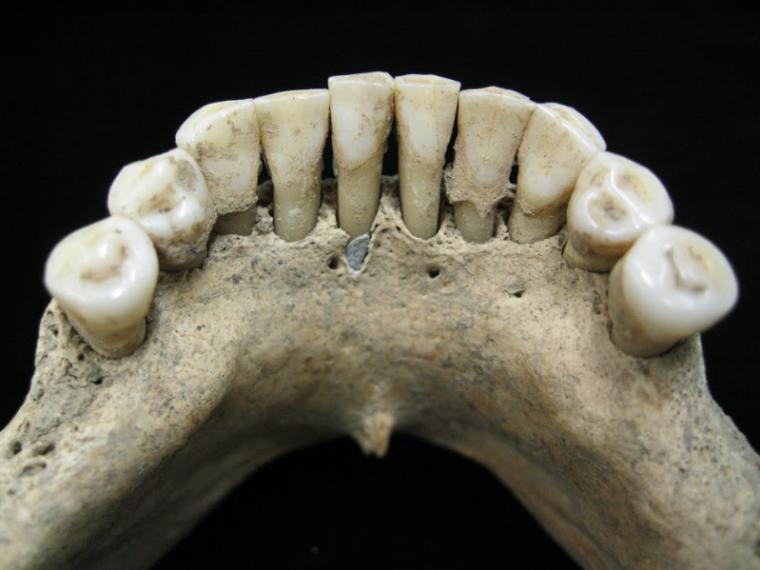 Nun-blue-teeth